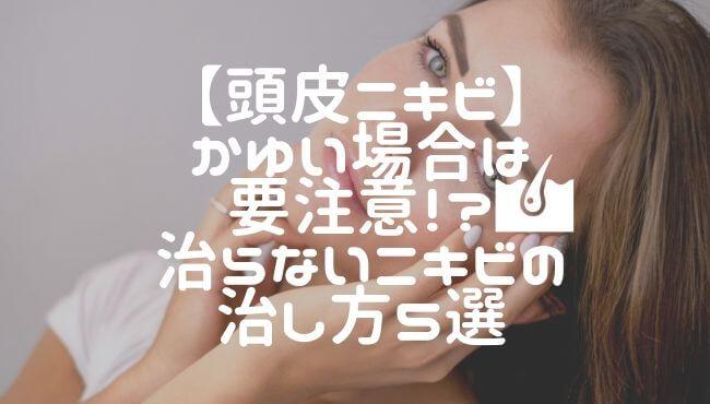 【頭皮ニキビ】かゆい場合は要注意!?治らないニキビの治し方5選